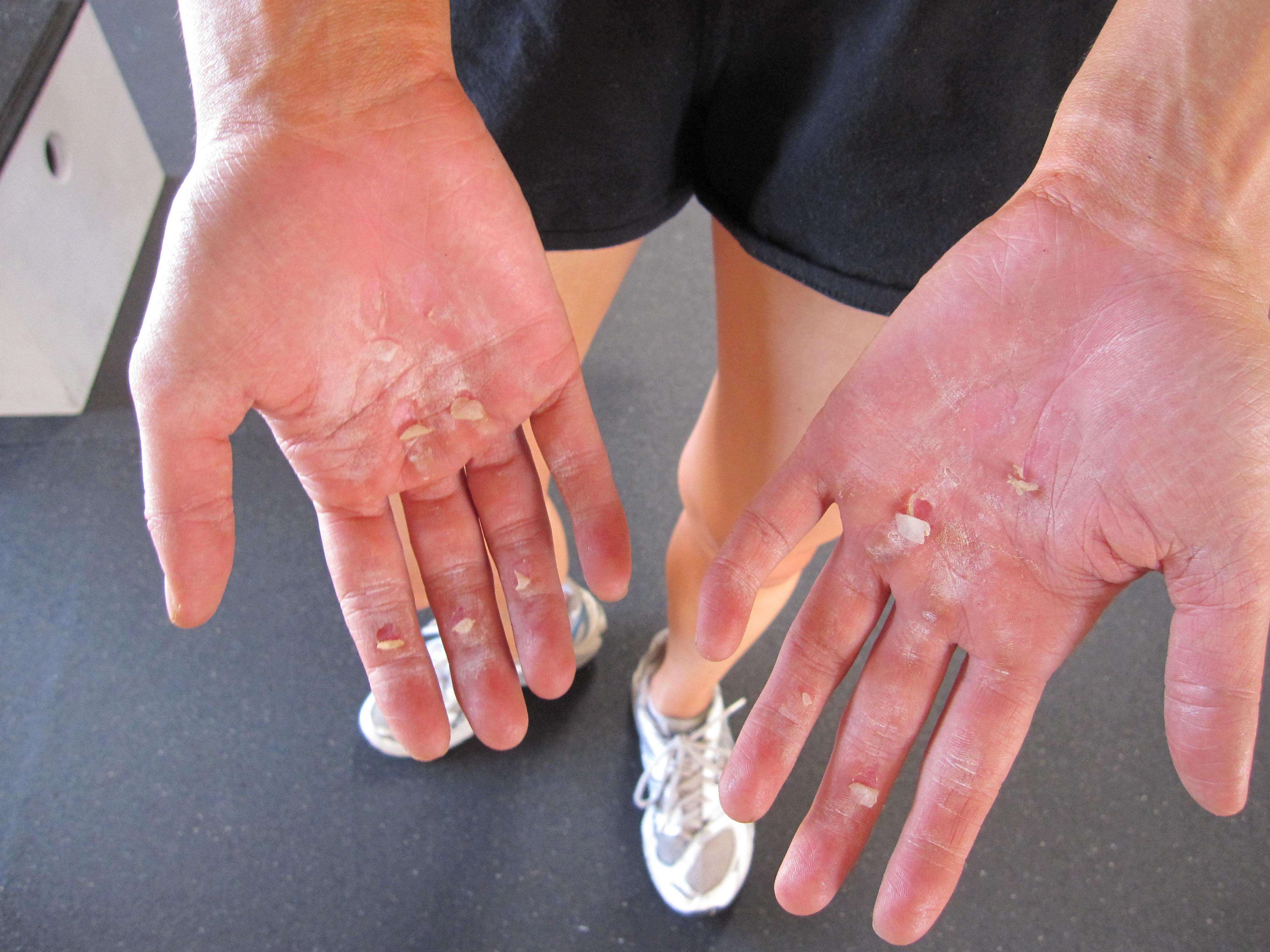 Torn Hands