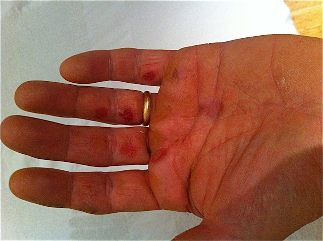 Hand Tear 48 hours after using Climb On!